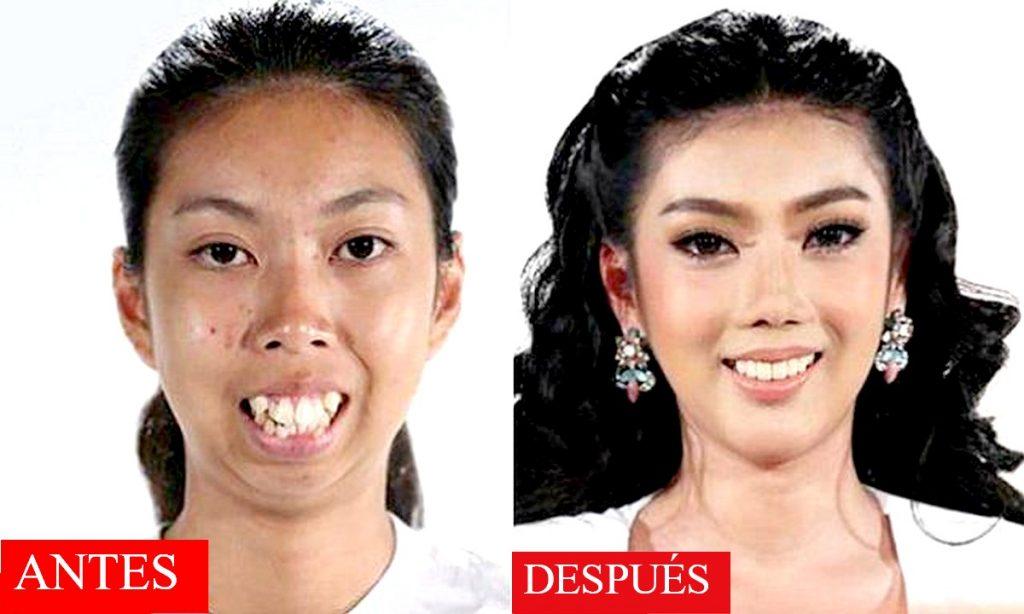 belleza-cirujias-platicas-mujer-hermosa-corea-